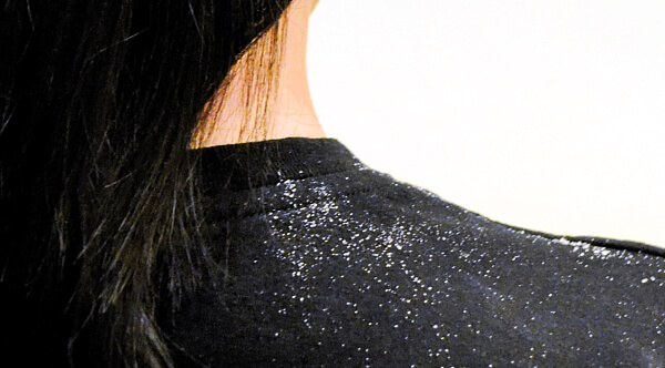 Vlasy s lupy