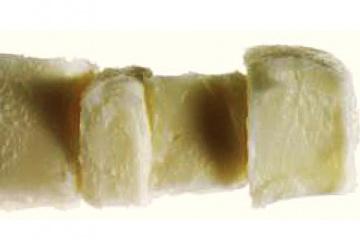 Karité - bambucké máslo