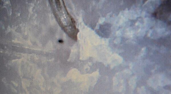 Lupovitost vlasové pokožky a lupy pod mikroskopem (400x)