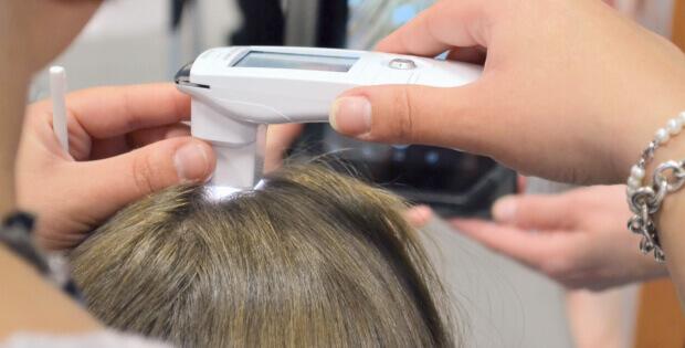 Trichologie: Vyšetření vlasů a vlasové pokožky